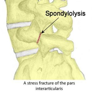 sponylolysis_labelled